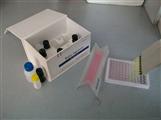 人β淀粉样蛋白1-40(Aβ1-40)ELISA试剂盒