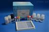 人玻连蛋白/体外粘连蛋白(VN/CD51+CD61)ELISA试剂盒