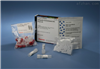 人诱导型一氧化合成酶(iNOS)elisa检测试剂盒